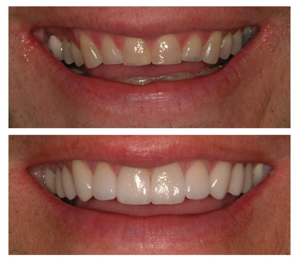 Invisalign Before And After Gap luther vandross: invis...